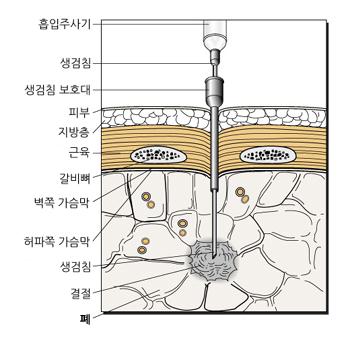 CT 유도하 세침 흡인술(2)