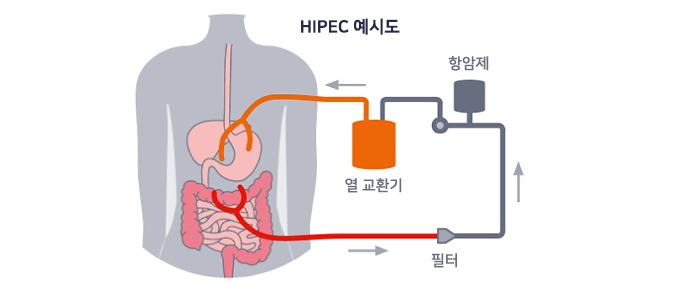 HIPEC 예시도